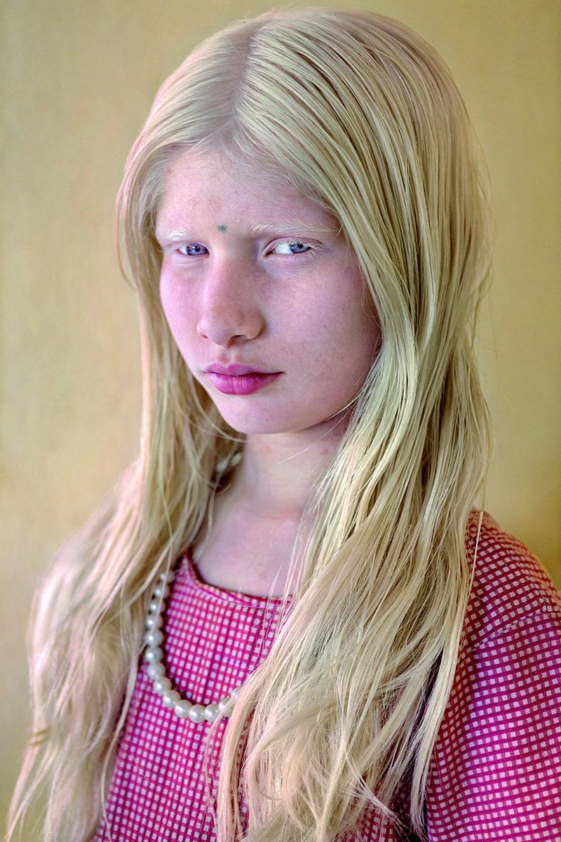 Nandini B. estudia en la Escuela de la Fundación para Personas con Discapacidad Visual de Bukaraya Samudram. «Me sorprendió su piel tan negra, siendo albina. Me pareció que se veía muy hermosa con el uniforme y el collar de perlas mientras jugaba con sus compañeros en el recreo».